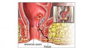Fistula-in-ano treatment without surgery by ayurveda